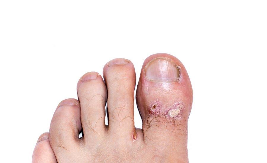 Calzature di sicurezza per Eczema deidrotico