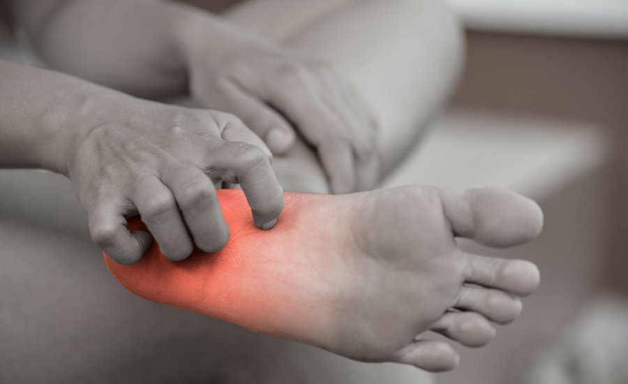 Calzature di sicurezza per Eczema disidrotico - Safety Shoes Today